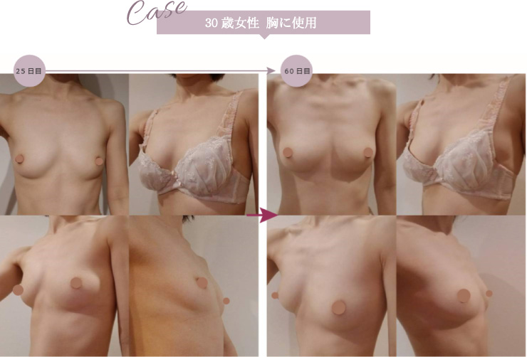 30歳女性 胸に使用