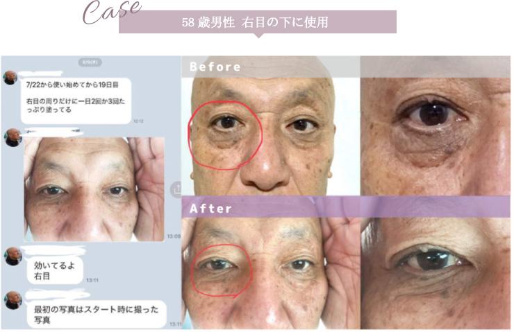 58歳男性 右目の下に使用