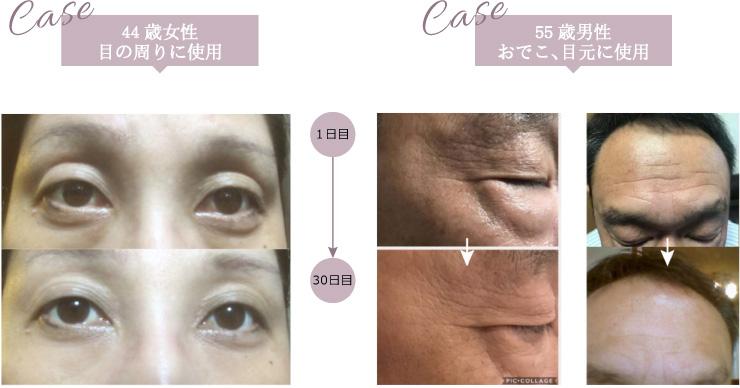 44歳女性 目の周りに使用・55歳男性 おでこ、目元に使用