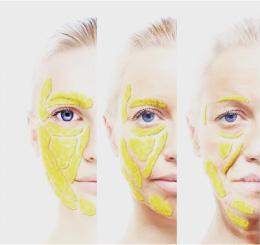 顔の皮下脂肪が老化と直接的な関係