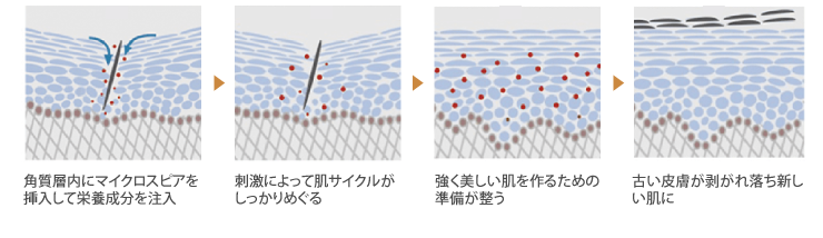 肌サイクル促進の図