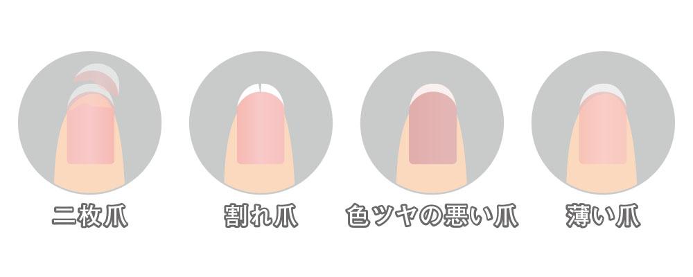 二枚爪・割れ爪・色ツヤの悪い爪・薄い爪